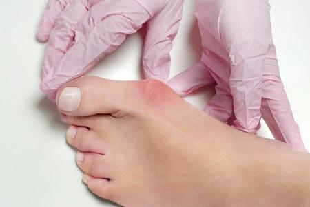 外反母趾、ホワイト バック グラウンドに足を女性の腱膜瘤