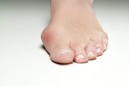Hallux valgus, bunion in woman foot on white background