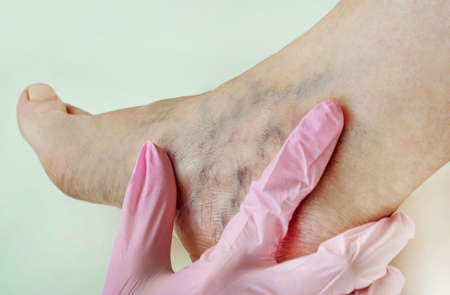 Varicose veins on the womans legs close up Banque d'images