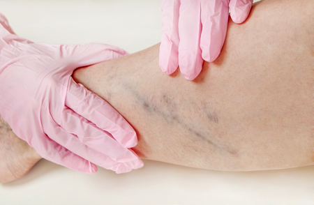 Varicose veins on the womans legs close up Stock Photo