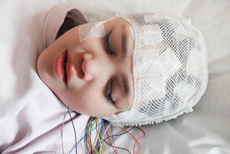 Girl with EEG electrodes attached to her head for medical test