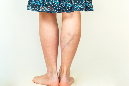 Examination of varicose veins on the womans legs 스톡 콘텐츠