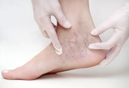 Spider veins on the womans legs, sclerotherapy treatment Фото со стока