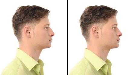 鼻形成術を持つ男。前に、と後の鼻を持つ若い男の写真仕事の整形手術。