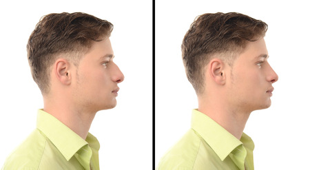Man with rhinoplasty. Before and after photos of a young man with nose job plastic surgery.