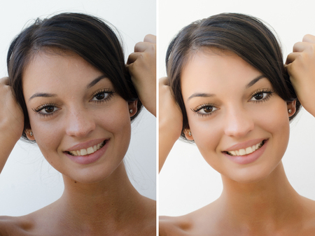 edited photo: Portrait of a beautiful brunette girl before and after retouching with photoshop. Bad photo vs good photo, acne beauty treatment. Edited photos being compared.