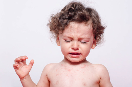 Portrait of a cute sick baby boy crying looking down to his spots. Adorable upset child with spots on his face and body form illness, mosquito bites, roseola, rubella, measles. Standard-Bild