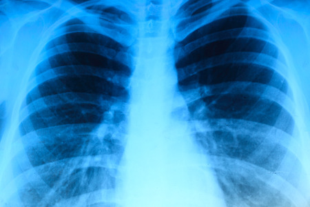adult bones: X-ray image of chest bones of adult, abstract blue background