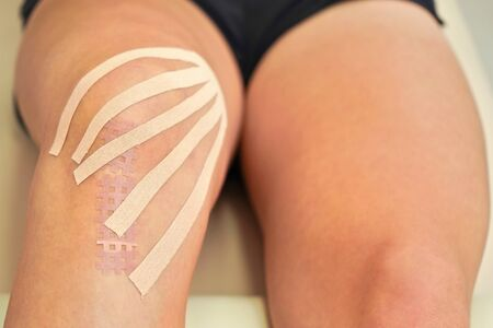 Kinesiology tape in body color cut to thin stripes applied to knee of female patient, closeup detail.