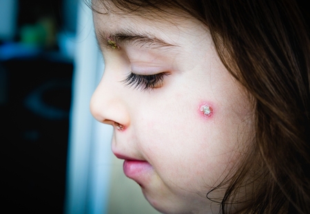 chicken pox spots baby face side cheek 写真素材