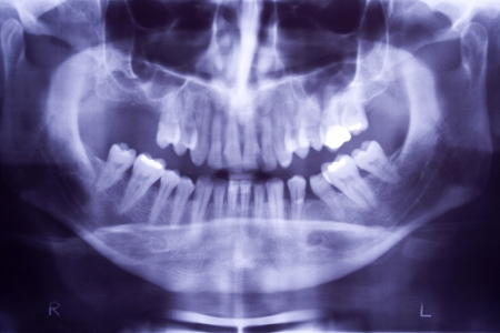 Photo of Buccal x-ray