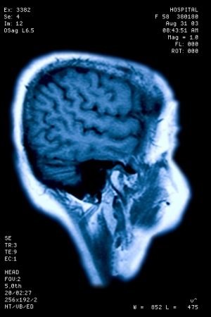 extra terrestrial: Photo of E.T. magnetic resonance