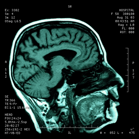 Magnetic resonance Stock Photo