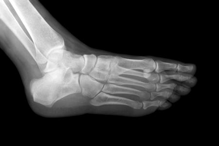 anklebone: Left foot x-ray isolated on black background   Raio-x do pé esquerdo no fundo preto