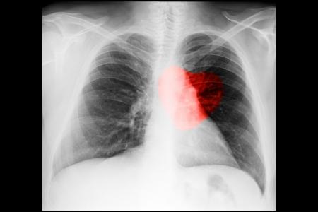 corazon humano: Radiografía del pecho masculino sobre fondo negro