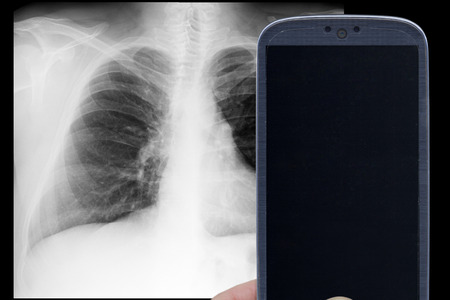 Smatrphone and male chest xray on black background. Idea for medicine xray app tricks games and others. photo