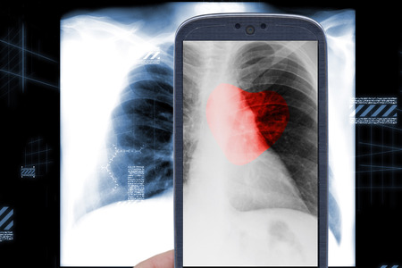 Smartphone and male chest xray with heart shape on black background photo