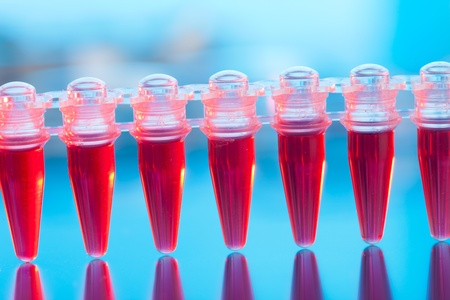 blood test: Blood screening for the AIDS virus