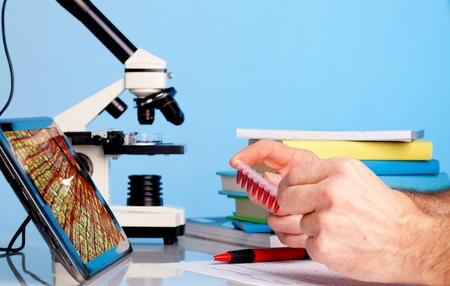 biopsia: Prueba de biopsia c en microscopio de c�lulas cancerosas