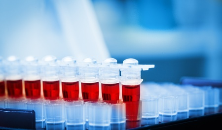 blood test: Blood samples for research in microtubes Stock Photo