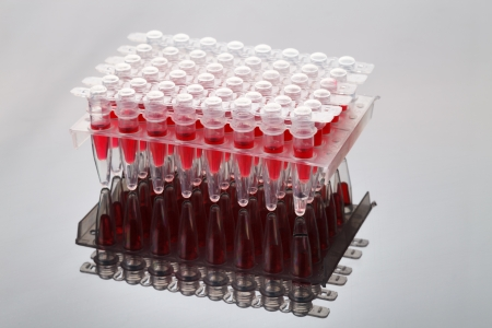 assay: Cassette with test tubes for laboratory test