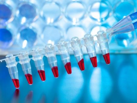 tubo de ensayo: Las muestras de sangre para determinar la paternidad de ADN utilizando Foto de archivo