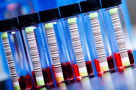 anemia: Blood samples in a test tube with barcode