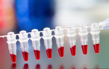 genomics: Metagenomic research of natural samples in microtube strips