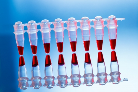 sample tray: Micropipette with biological samples Stock Photo