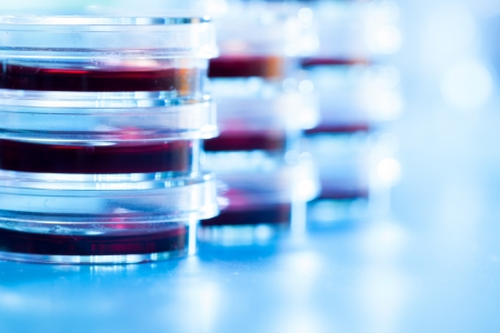 clinical research: Petri dishes in the laboratory of the clinic