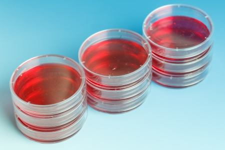 Stack of petri dishes with samples of biological cultures Imagens - 19114287