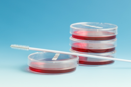 stem cell: Cultivation of pathogenic cultures in Petri dishes Stock Photo