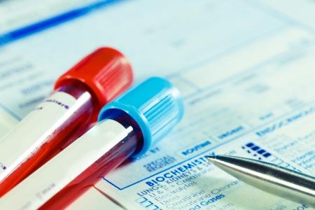 red tube: Formulario para rellenar los resultados de los análisis de sangre bioquímica Foto de archivo