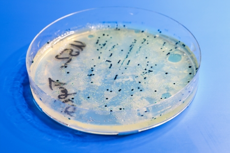 Petri dish with colonies of microorganisms photo