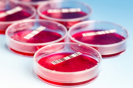 petri dish with blood samples photo