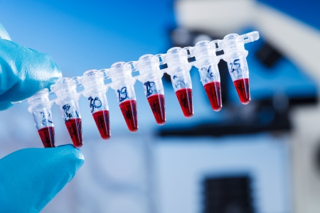 genetic research: PCR supplies for genetic research