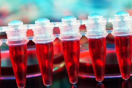Cellule staminali per il trattamento del cancro in un microtubo Archivio Fotografico - 23421992