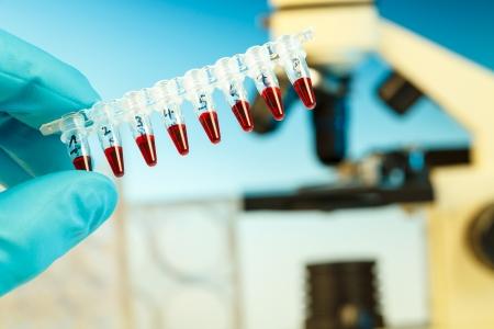 PCR strip in hand photo