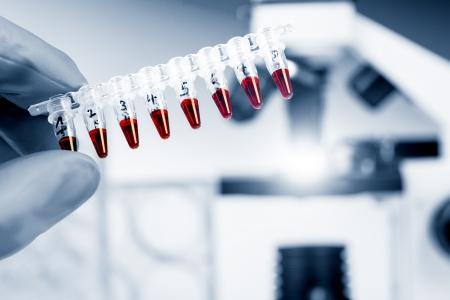 stem: Tubes à échantillons génétiques