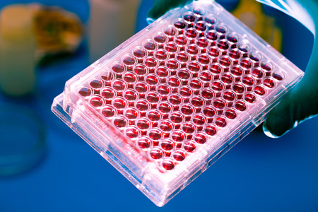blood cells: Tubes with genetic samples Stock Photo