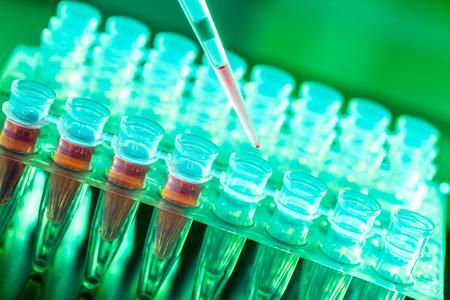Biopsia: La investigación de laboratorio de las enfermedades cancerosas, estante con muestras de ARN