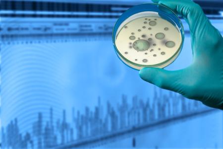 organisms: colonies of pathogenic organisms in a petri dish