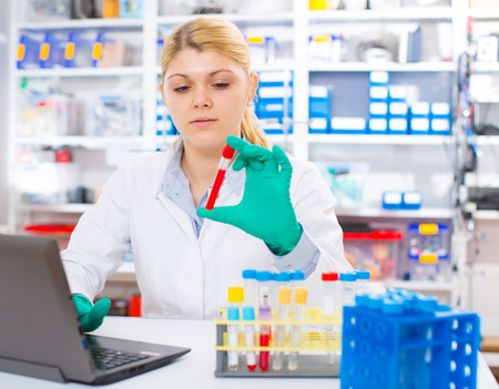 uses a computer: A woman laboratory assistant uses a computer research blood sample Stock Photo