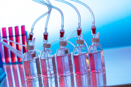 biochemical: Growing biological culture, bottles the laboratory shaker Stock Photo