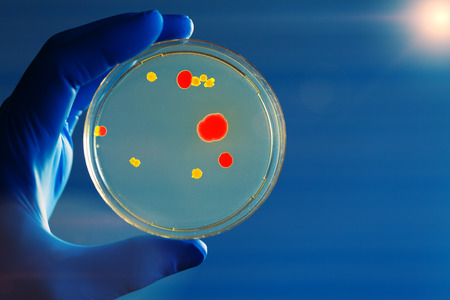petri dish: petri dish in Gloved hand