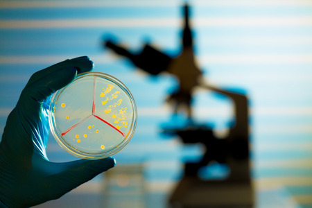 Petri dish in hand  and microscope  on laboratory background photo