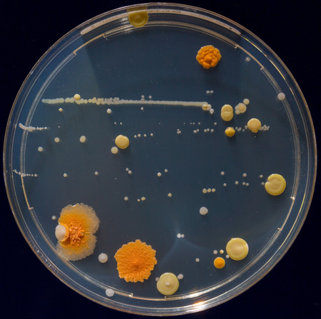 Petri dishes with colonies of pathogenic organisms photo
