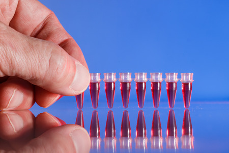 assay: PCR strip test tubes and micropipette in genetics laboratory