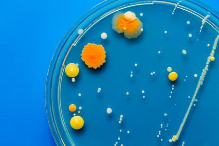 Las colonias bacterianas amarillas y naranjas sobre sustrato de agar agar en placa de placa de Petri sobre fondo azul Foto de archivo - 39258554