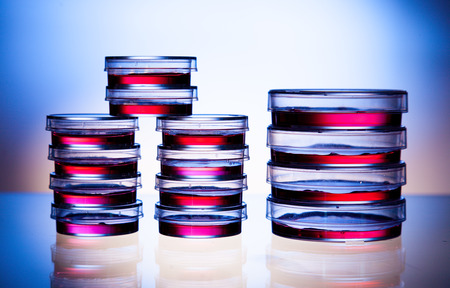 listeria: Samples in petri dishes in laboratory